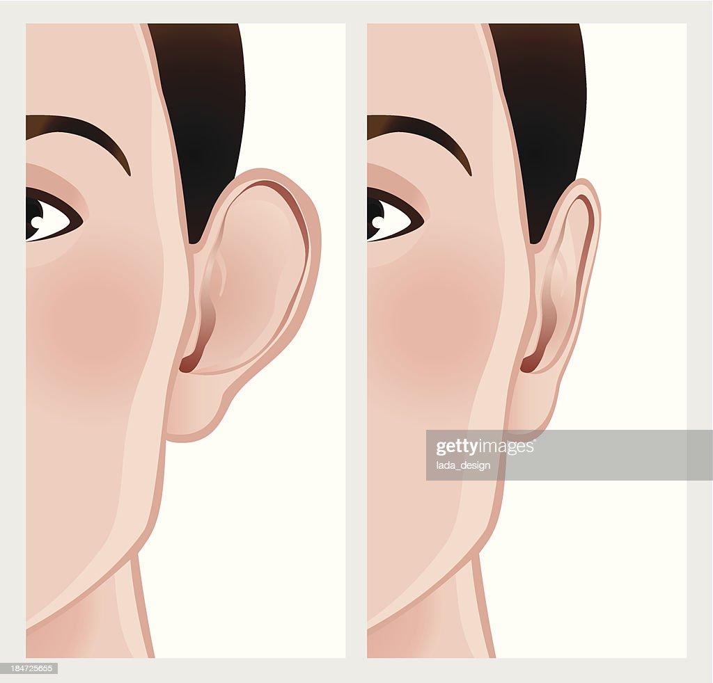 Ear pinning, otoplasty.