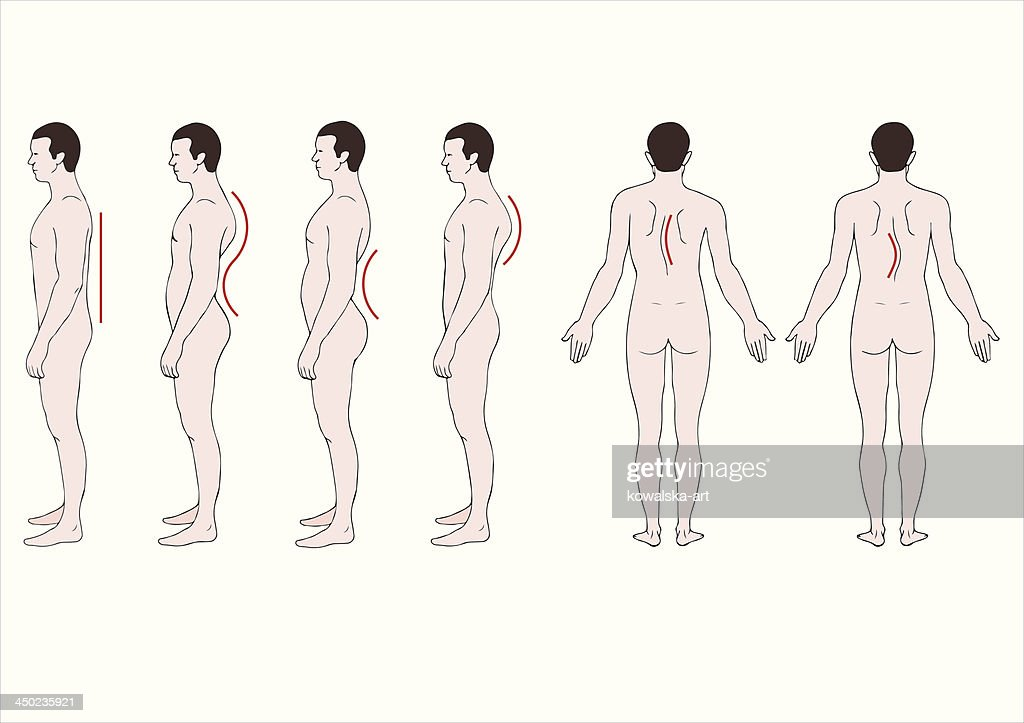 educational illustration deformation of the spine