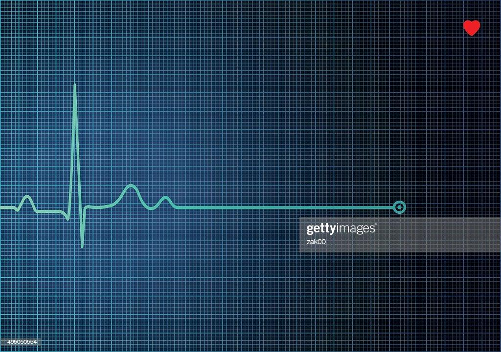 Electrocardiograma en el ECG : Ilustración de stock