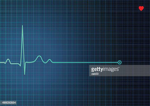 illustrations, cliparts, dessins animés et icônes de electrocardiogram ekg - stress