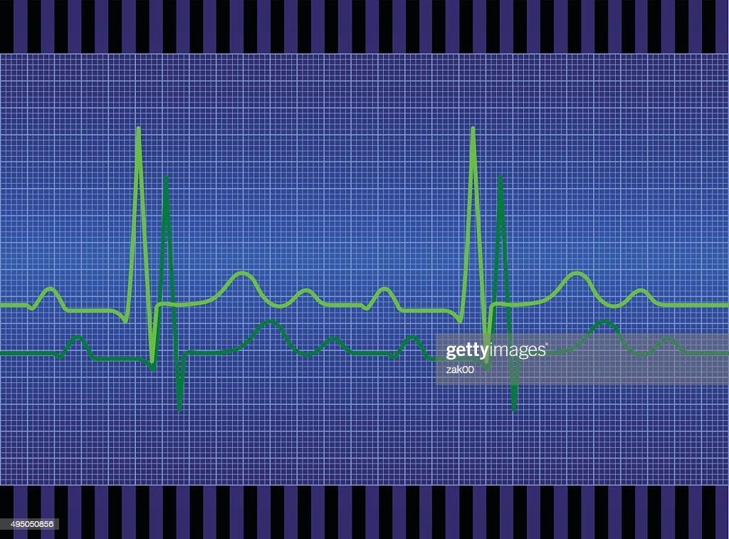 Electrocardiogram EKG : stock illustration