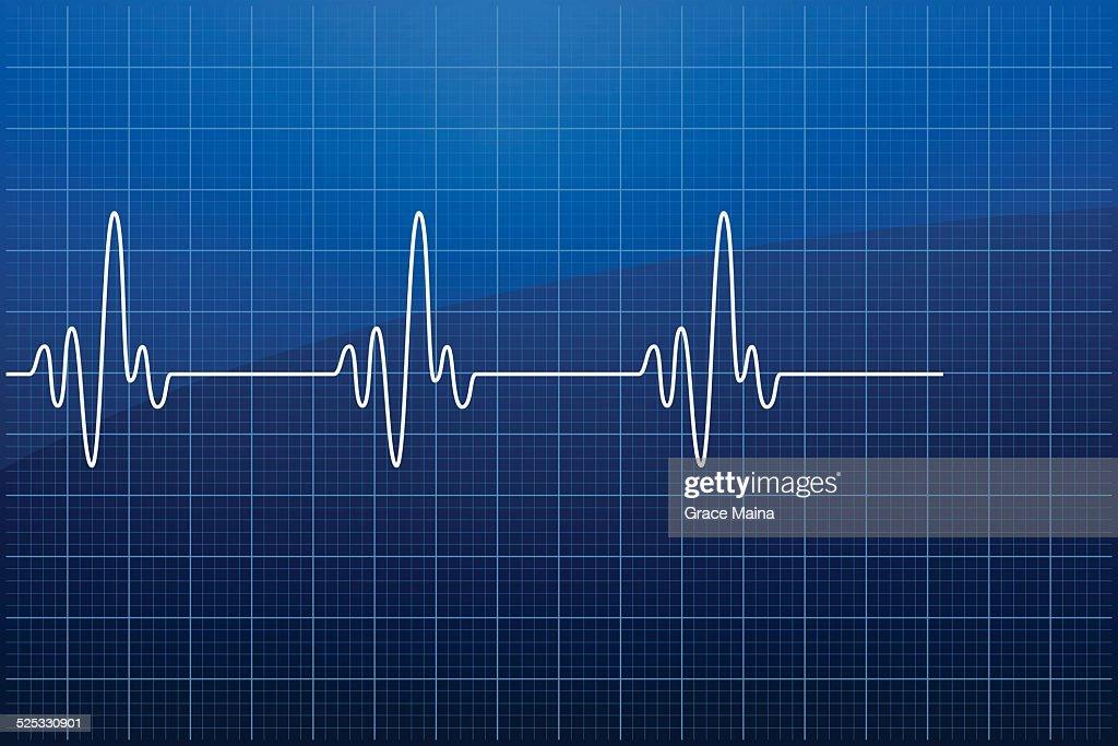 El ECG: electrocardiograma VECTOR : Ilustración de stock