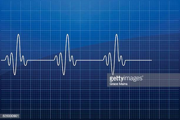 ilustraciones, imágenes clip art, dibujos animados e iconos de stock de el ecg: electrocardiograma vector - cardiólogo