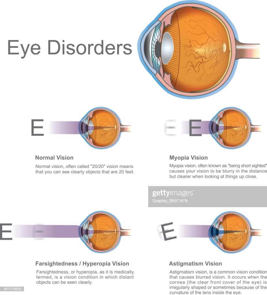 Eye disorders.
