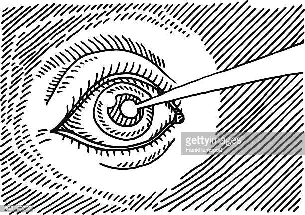 Eye Laser Surgery Drawing