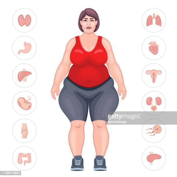 fat woman. danger of obesity - arthritis stock illustrations