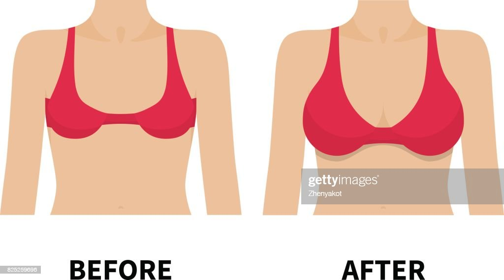 Female breast before and after plastic surgery