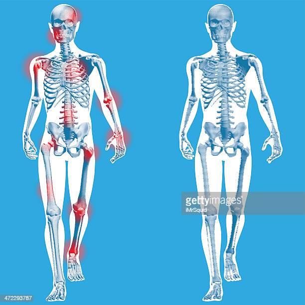 ilustraciones, imágenes clip art, dibujos animados e iconos de stock de figura corta-vista de frente - esqueleto humano