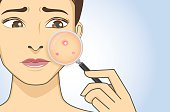Finding acne with magnifier