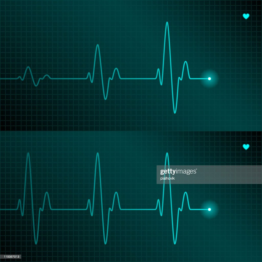 A fine blue line of the ECG with a tiny heart symbol