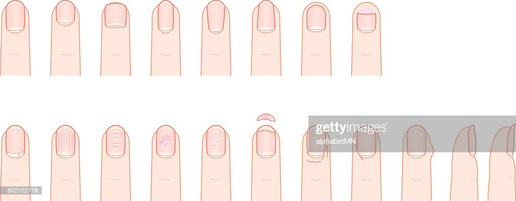 Fingernail, shape and condition.