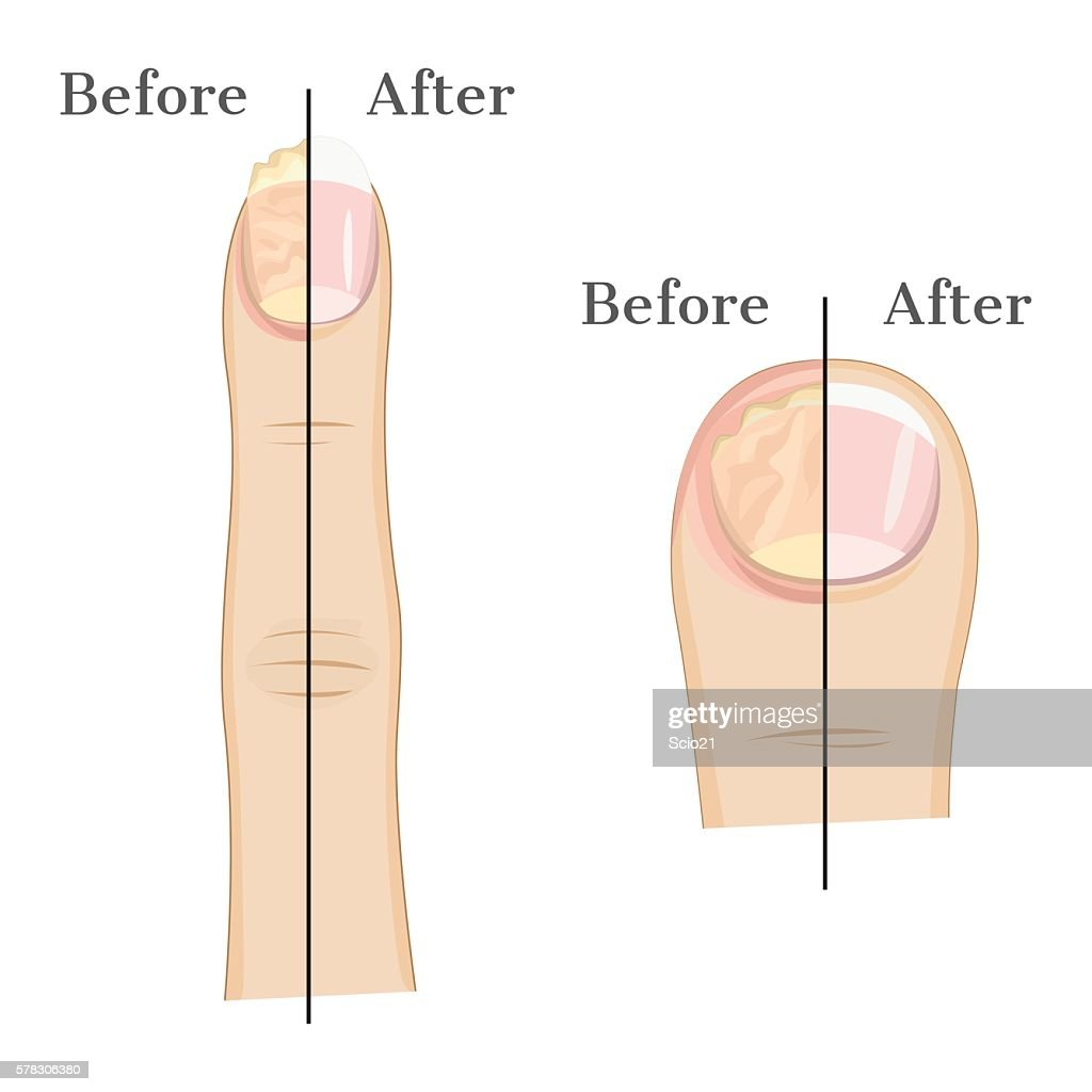 Fungal infection of the nail