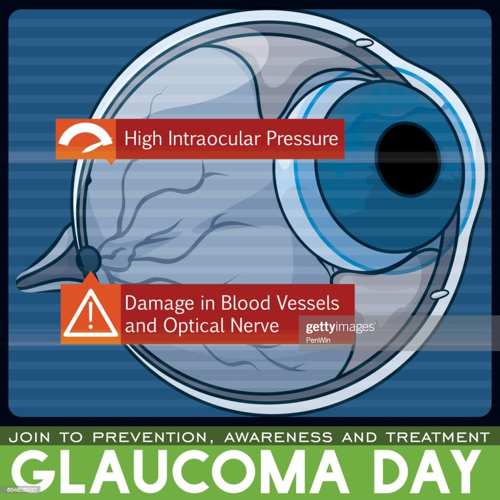 Glaucoma Day Design: Sick Eye Scan Due to this Disease