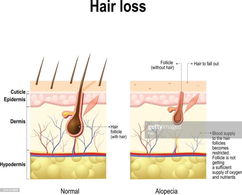 Hair loss, alopecia, baldness