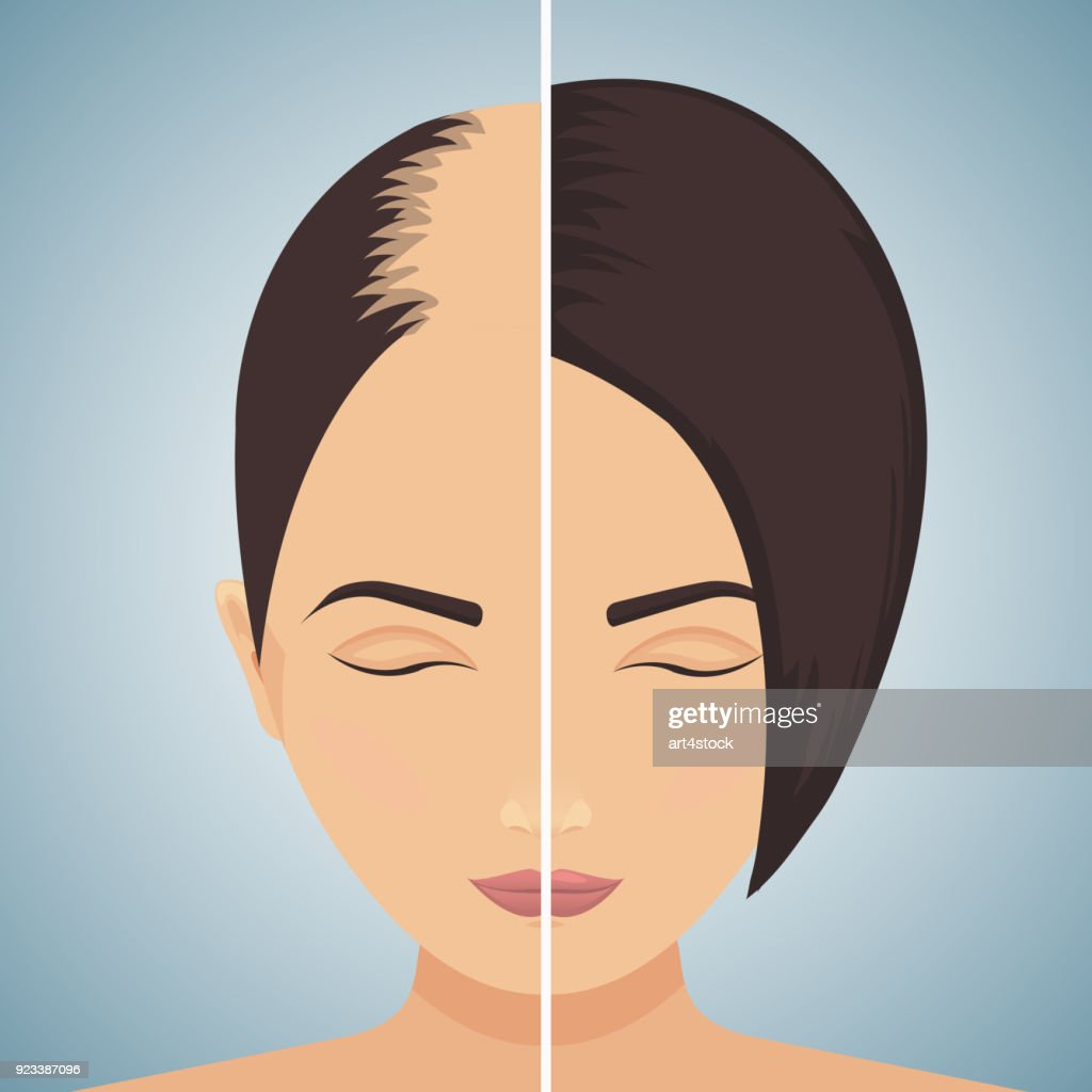 Hair loss in women - before after concept