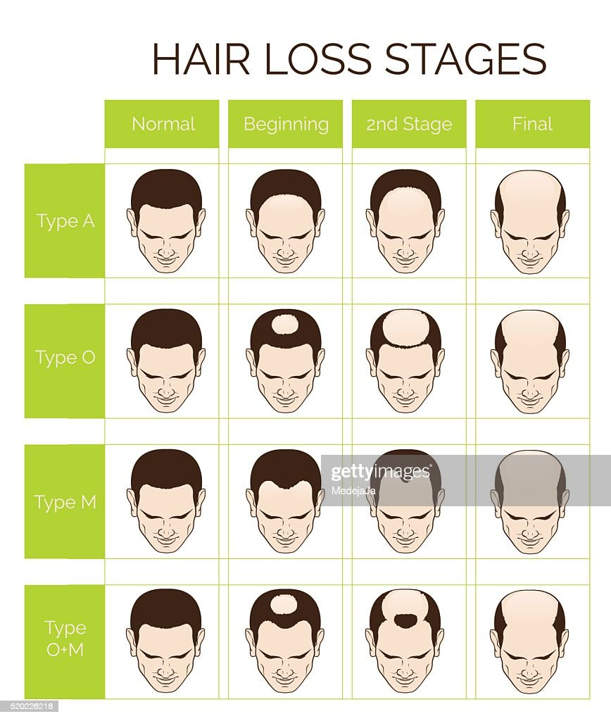 Hair loss stages and types for men