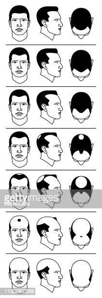 hair loss - balding stock illustrations