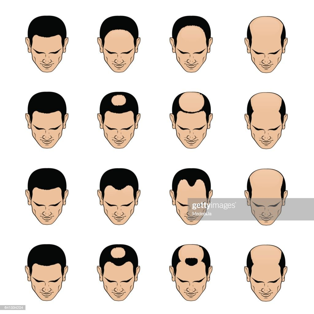 Hairl loss patterns and stages for men