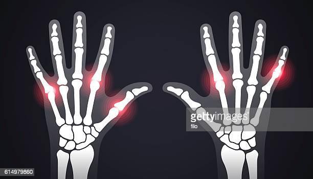 hand pain x-ray - arthritis stock illustrations
