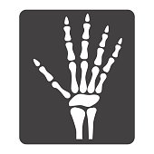 Hand X-ray glyph icon, medicine and healthcare, radiology sign vector graphics, a solid pattern on a white background, eps 10.