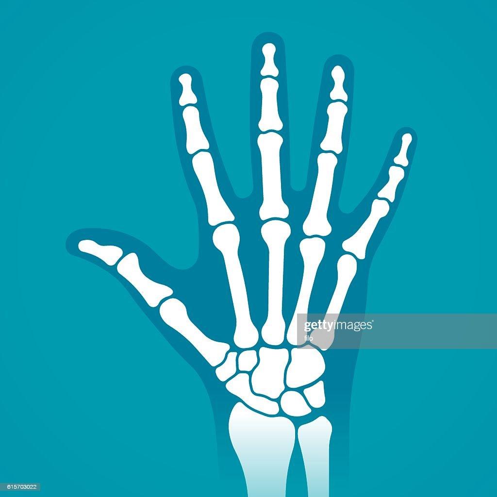 Hand X-Ray : stock illustration