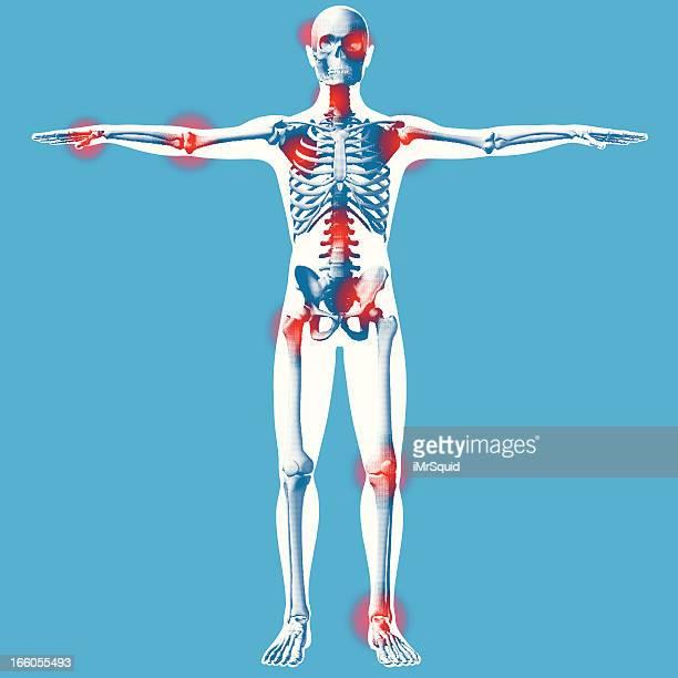 ilustraciones, imágenes clip art, dibujos animados e iconos de stock de manos estirados-vista frontal de rayos x - hueso de la pierna