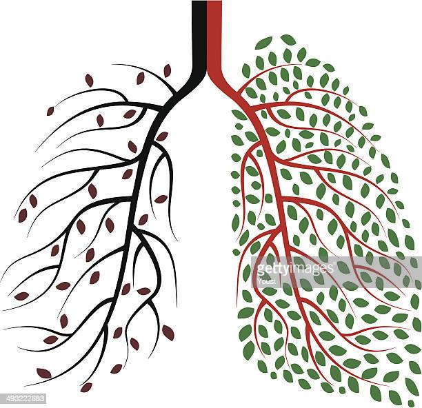 healthy and diseased human lungs concept - cancer illness stock illustrations, clip art, cartoons, & icons