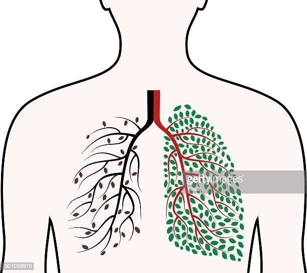 healthy and diseased human lungs concept. - smoking issues stock illustrations, clip art, cartoons, & icons