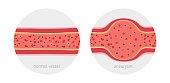 Healthy and sick aneurysm human vessel