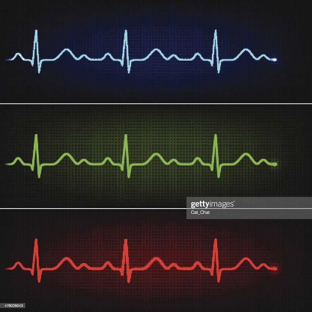 Healthy cardiogram
