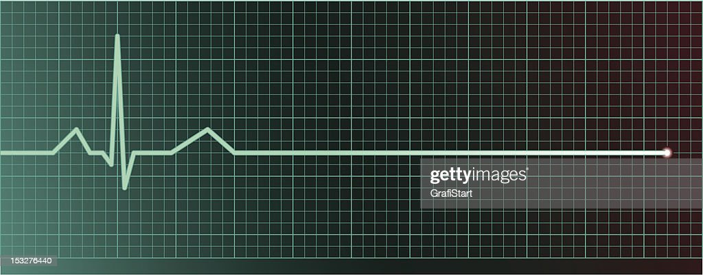 Heart pulse flatline
