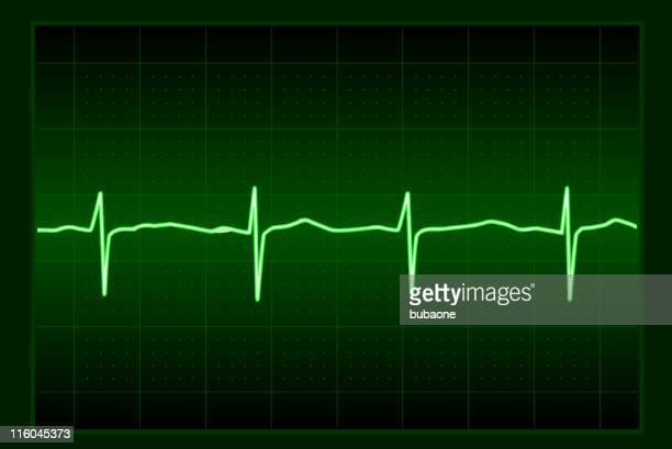 ekg heart rate wave pulse - cardiac conduction system stock illustrations