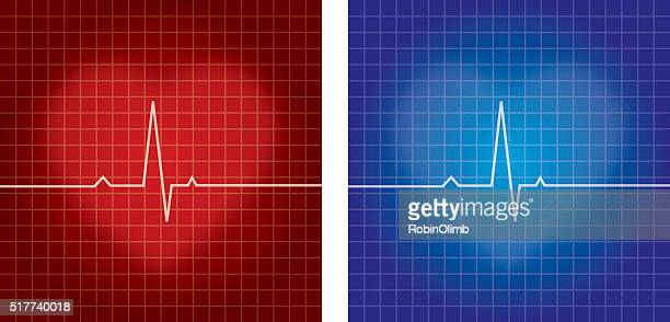Heartbeat Monitors