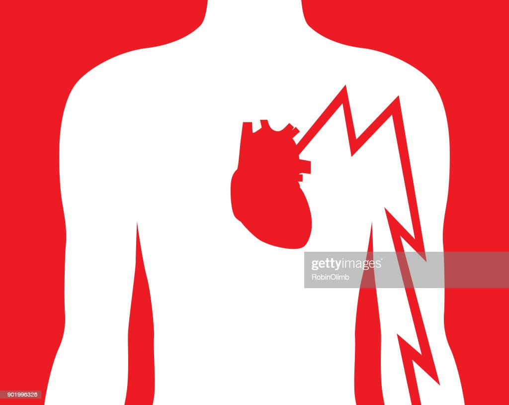 Hearts Attack Left Arm Pain