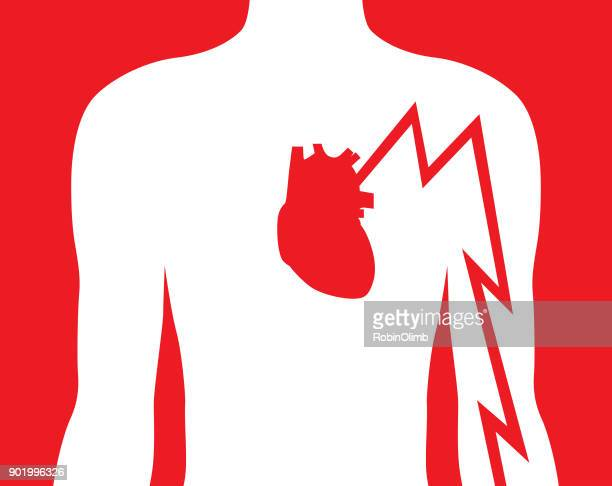 hearts attack left arm pain - chest torso stock illustrations, clip art, cartoons, & icons