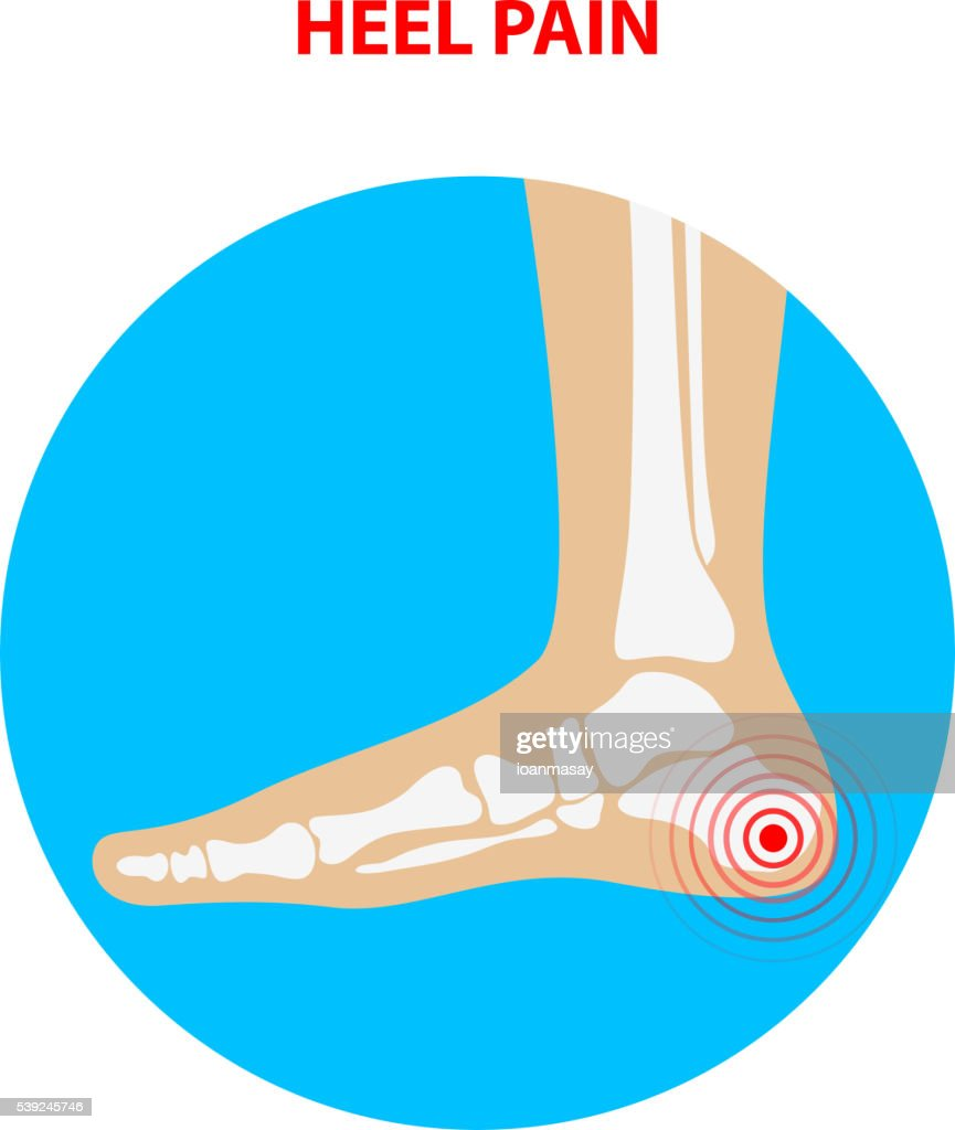 heel pain. Human ankle joint icon. Foot health care.  Vector