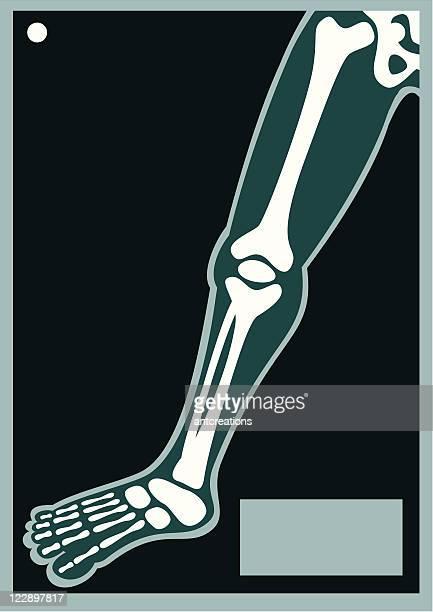 ilustraciones, imágenes clip art, dibujos animados e iconos de stock de cuerpo humano x ray pierna - hueso de la pierna