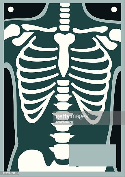 human body x ray rib cage - chest torso stock illustrations, clip art, cartoons, & icons