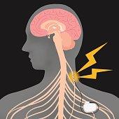 human brain and vagus nerve stimulation:VNS, image illustration