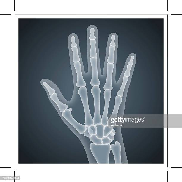 human hand x-ray - wrist stock illustrations, clip art, cartoons, & icons