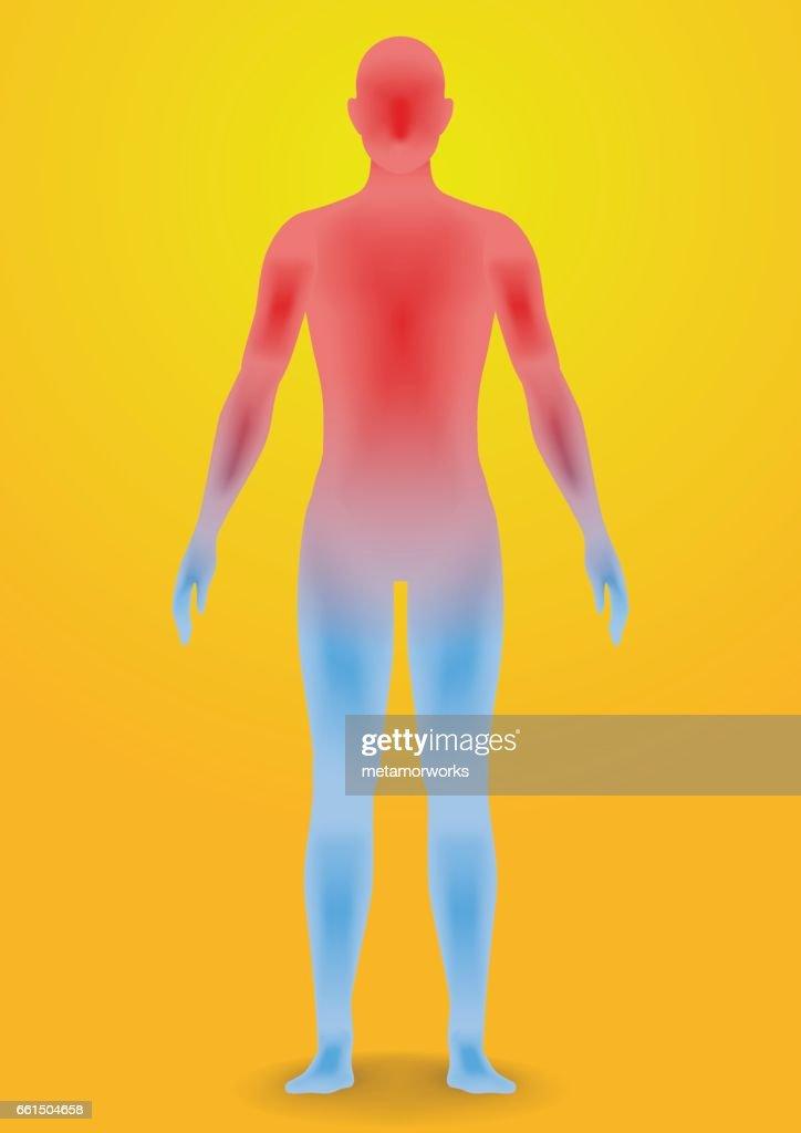 human heatstroke, thermic fever, thermoplegia, image illustration