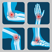 Human joints with pain rings. Arthritis and rheumatism infographic. Medical app vector buttons