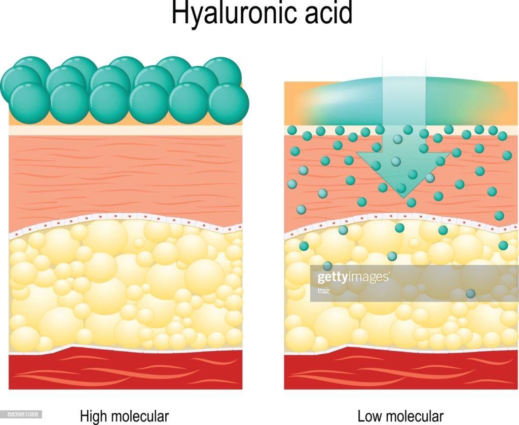 Hyaluronic acid.