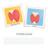 Hyperthyroidism and healthy thyroid gland