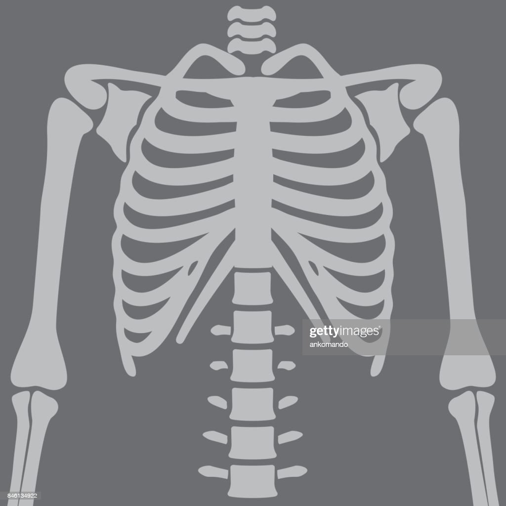 Illustration Chest X-rays