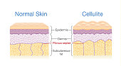 Illustration for compare normal skin layer and skin with Cellulite.