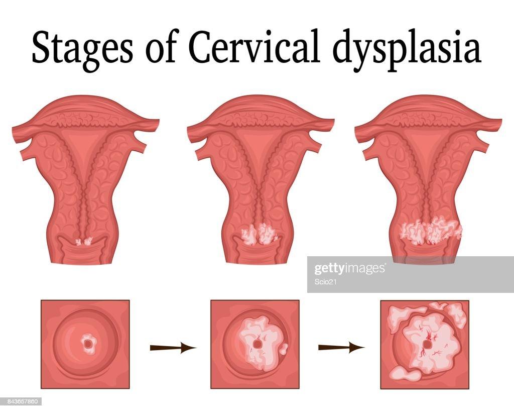 Illustration of Cervical dysplasia