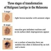 Illustration of Malignant Lentigo