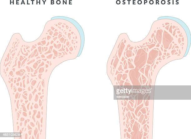 illustration showing healthy bone and osteoporosis - osteoporosis stock illustrations