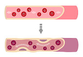 Illustration that healthy blood turns into muddy blood.